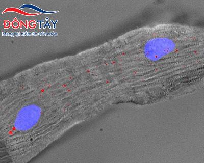 Singheart - ARN điều trị suy tim trong tương lai