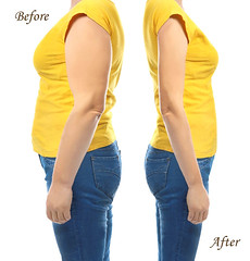 Tummy Tuck to boost Weight Loss