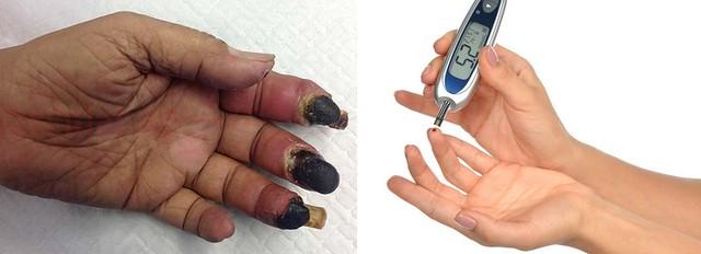 Berapa Lama Luka Diabetes Sembuh