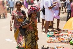 Woman with Neurofibromatosis in Varanasi, India.