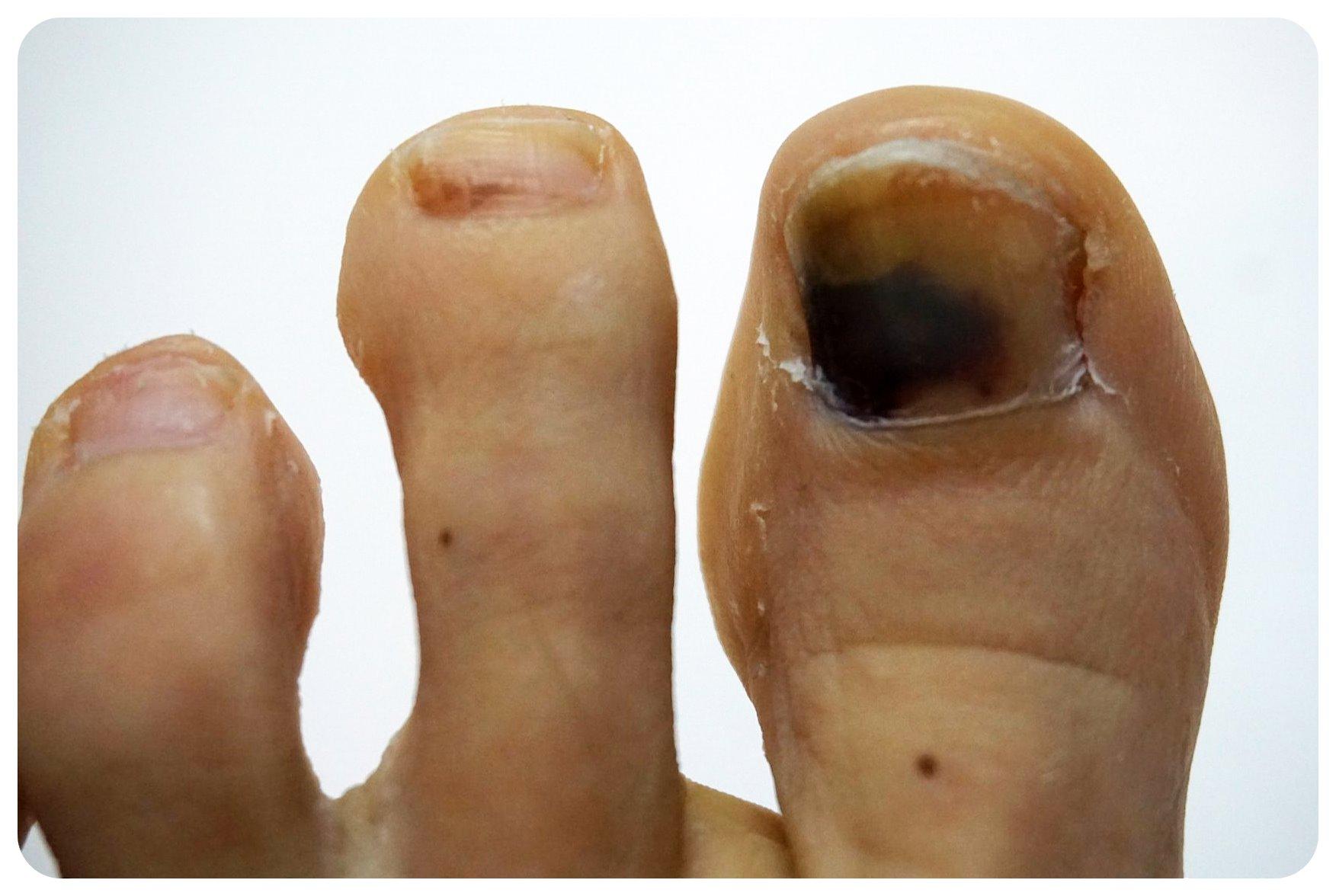 post hike toes