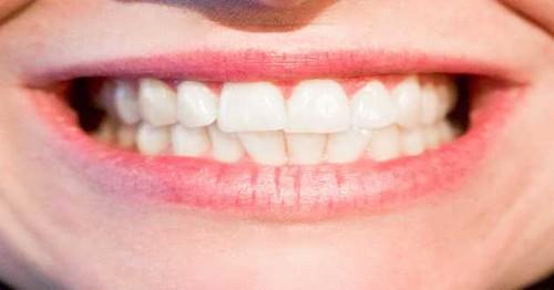 Ways to Get a Healthy, Brilliant Smile