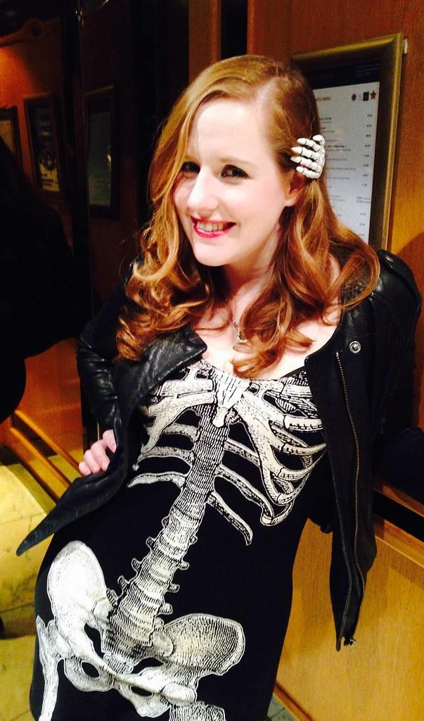 susan-boyle-bones