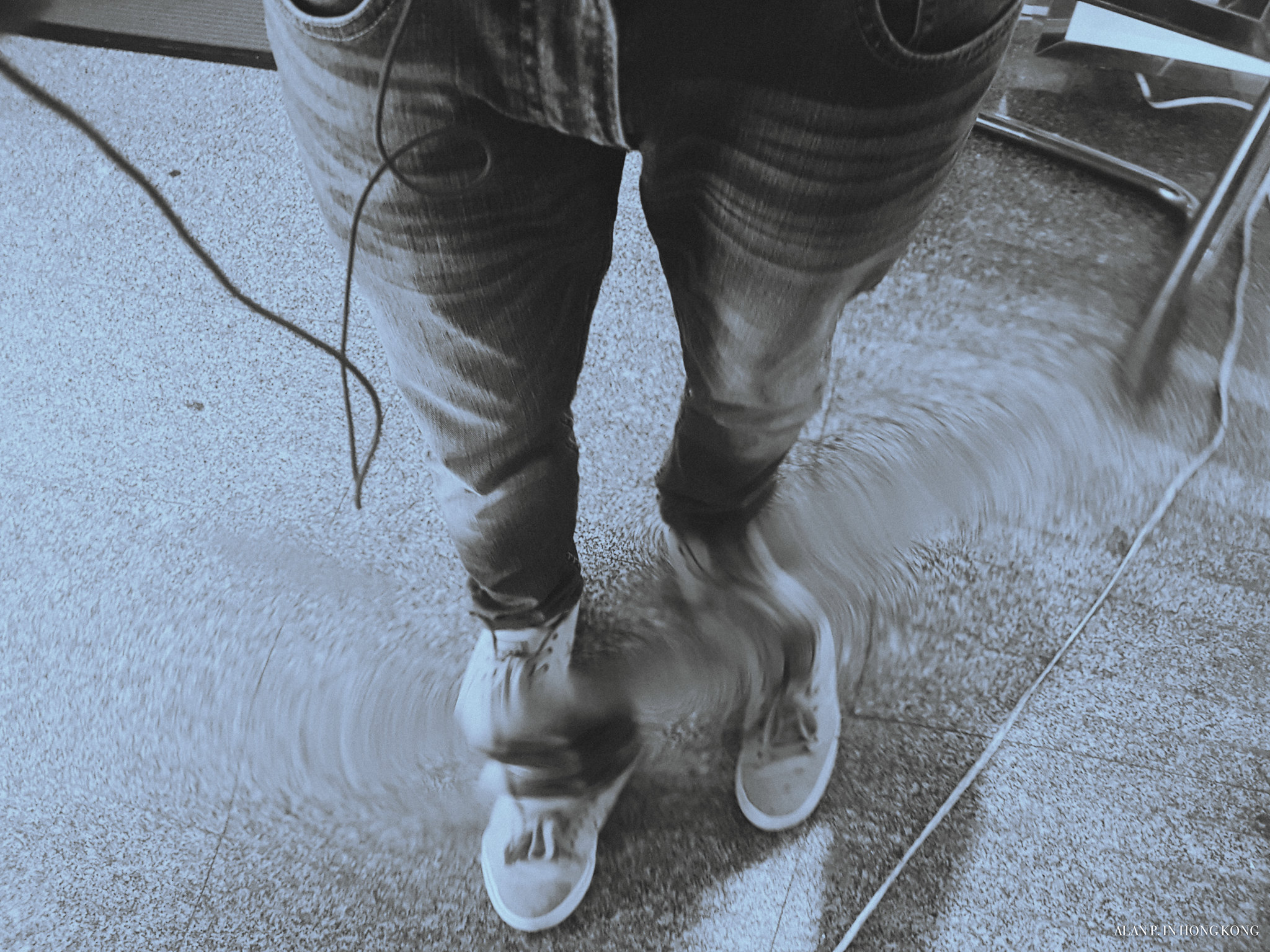 Distorted legs