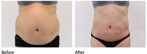 Dr. Darm LipoLift - MH Page 1