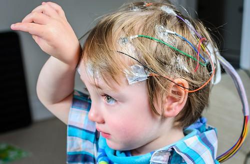 Epilepsi Pada Anak, Kenali Gejalanya Sejak Awal