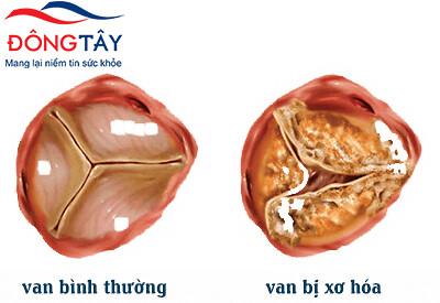 Điều trị bệnh van tim: khi nào phẫu thuật sửa, thay van