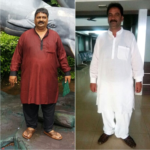 Weight Loss Surgery Reviews - Mr. Dharmendra Mundada