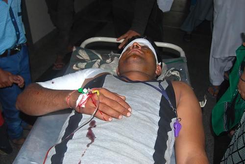 CRPF-Man-injured-in-Wanpoh-attack-on-sep-26-16