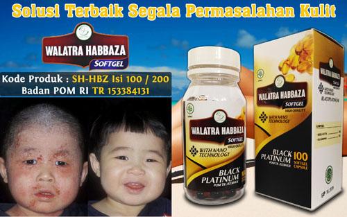 Salep Cream Dermatitis Pada Bayi 3 Bulan Di Apotik
