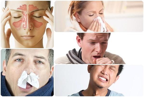 Obat Alami Sinusitis Dan Polip
