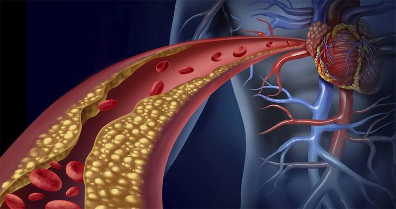 Ilustrasi. Penebalan pembuluh darah menuju jantung.