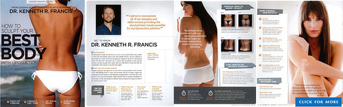 Brazilian butt lift performed By Kenneth R. Francis, MD