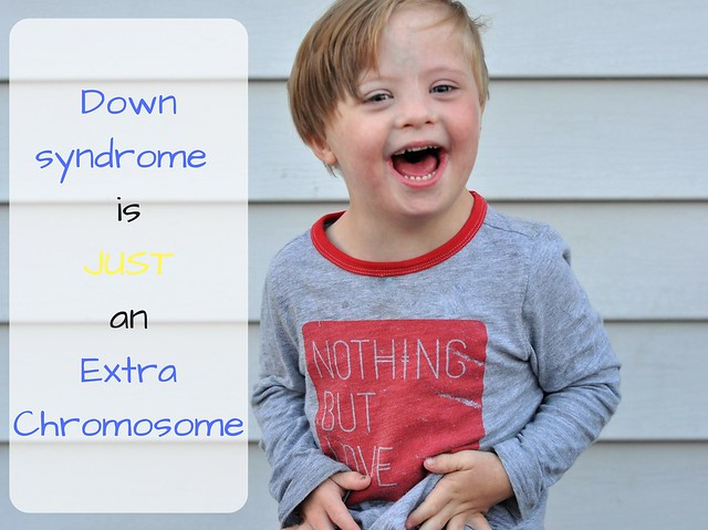 Down syndrome is JUST an Extra Chromosome