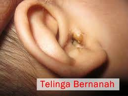 Cara Mengobati Telinga Bernanah