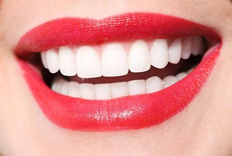 Teeth Whitening At Dental Smiles in Coral Gables, FL