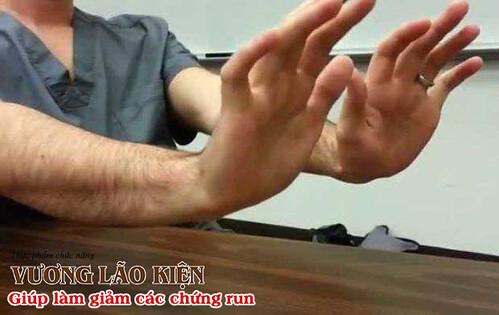 Run tay cũng có yếu tố về di truyền nhất định