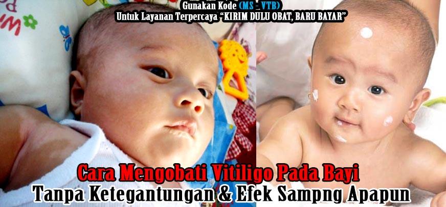 Cara Mengobati Vitiligo Pada Bayi