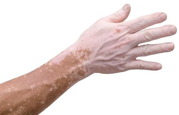 Cara Menyembuhkan Vitiligo Dengan Cepat