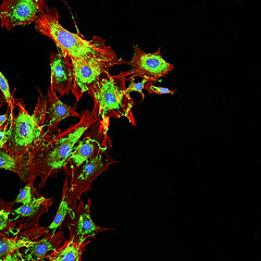 Imaging of metastatic cancer cells spreading on the surrounding tissue.