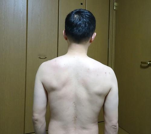 肩甲骨のバランスが悪い
