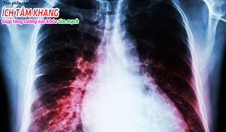 Suy tim toàn bộ gây ứ dịch trong phổi, ho mạn tính, khó thở