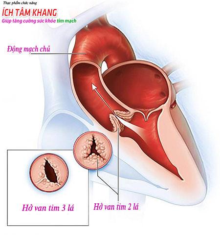 Hở van tim 2 ¼ cũng không nên chủ quan
