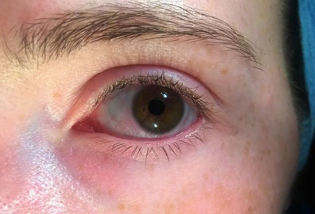 shampoo in the eye
