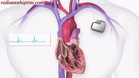 Nhịp tim chậm nếu không đáp ứng bằng thuốc sẽ cần đặt máy tạo nhịp tim