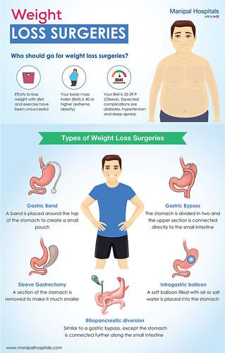 Weight Loss Surgeries