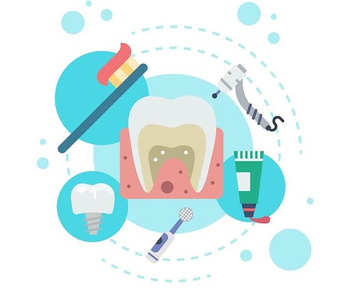 5 Reasons You Need A Dental Implant
