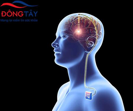 DBS là phương pháp mới trong điều trị Parkinson với nhiều ưu thế vượt trội