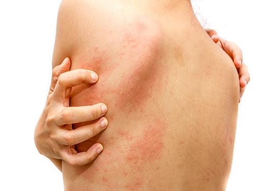 Obat Tradisional Dermatitis Atopik