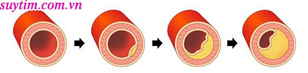 Những người bị tắc hẹp mạch vành có nguy cơ cao gặp phải cơn nhồi máu cơ tim