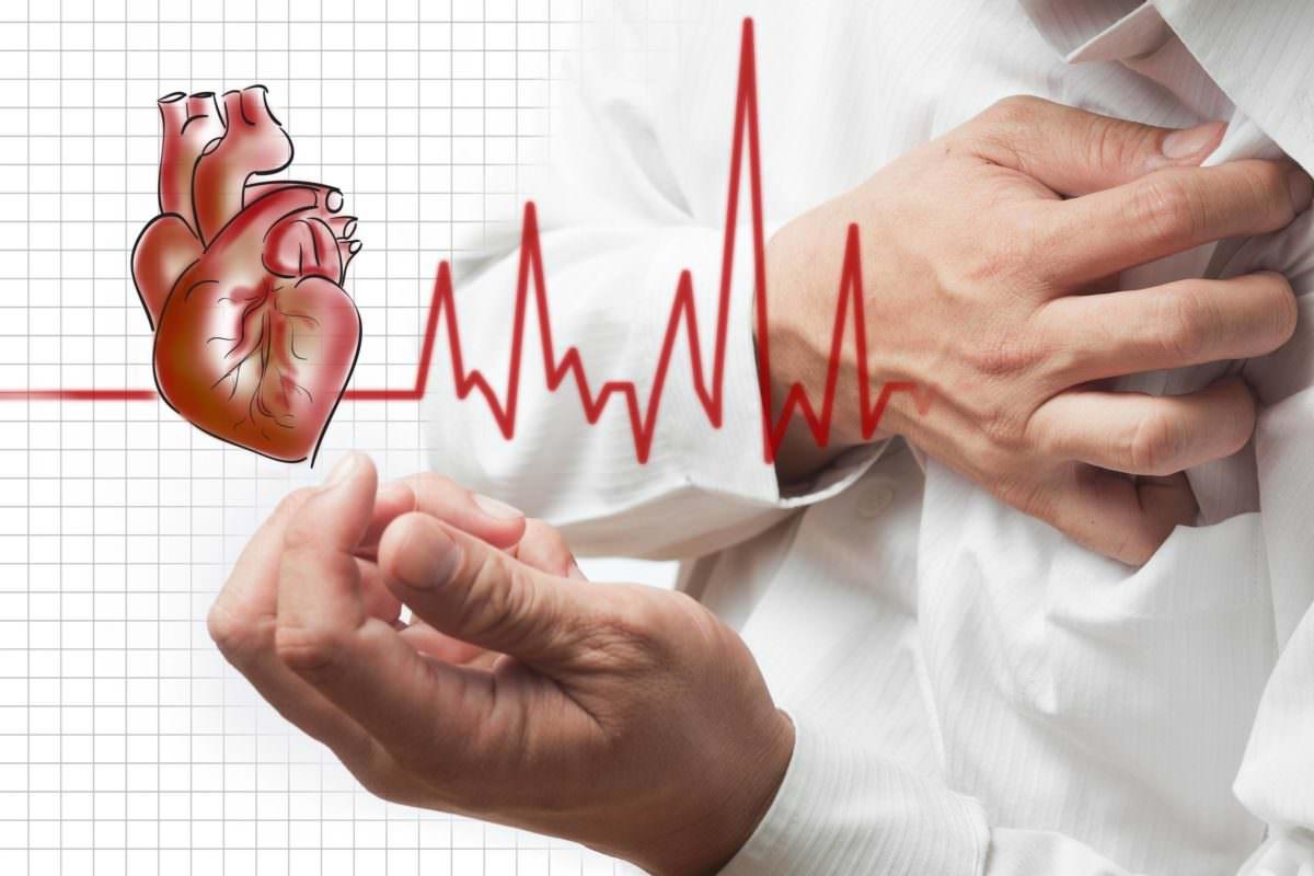 Nama Obat Jantung Resep Dokter