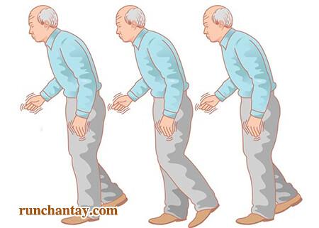 Tư thế thường gặp phải ở người bệnh Parkinson
