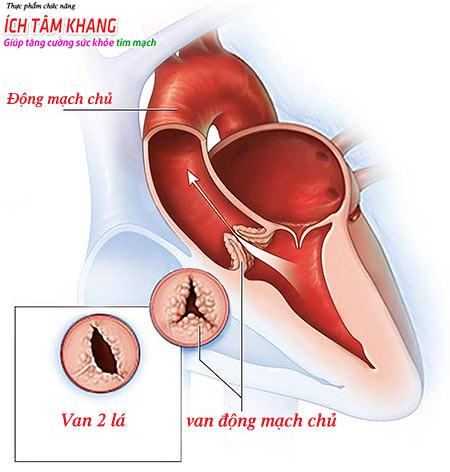 Hở van động mạch chủ - bệnh lý nguy hiểm cần trị sớm