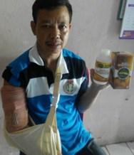 Obat Cedera Hamstring