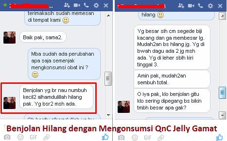 Alasan Mengapa QNC Jelly Gamat Bisa Obati Miom