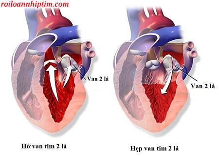 Rối loạn nhịp tim do hẹp, hở van tim 2 lá và cách trị hiệu quả