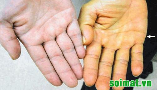 Vàng da  - dấu hiệu của sỏi mật ứ mật khi bị sỏi mật