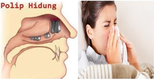 Cara Menyembuhkan Polip Hidung Tanpa Operasi
