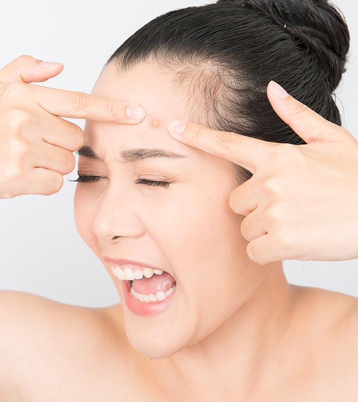 Dùng tinh bột nghệ để điều trị mụn