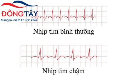 Thiếu máu cơ tim, nhịp tim chậm: làm cách nào để chữa trị hiệu quả?
