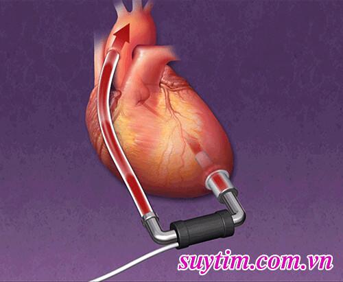 Trong-thời-gian-chờ-ghép-tim-người-bệnh-suy-bù-có-thể-sẽ-được-cấy-thiết-bị-trợ-tim