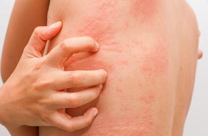 Cara menghilangkan gatal pada kulit karena alergi