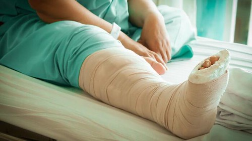 Obat Nyeri Setelah Operasi Patah Tulang
