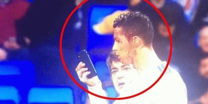 Ronaldo Berdarah Kepalanya Ketika Bertanding Melawan Deportivo La Coruna