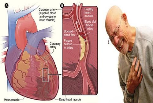 Cara Melancarkan Peredaran Darah Yang Tersumbat