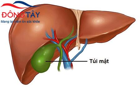 Phẫu thuật cắt túi mật và những vấn đề trên đường tiêu hóa cần chú ý